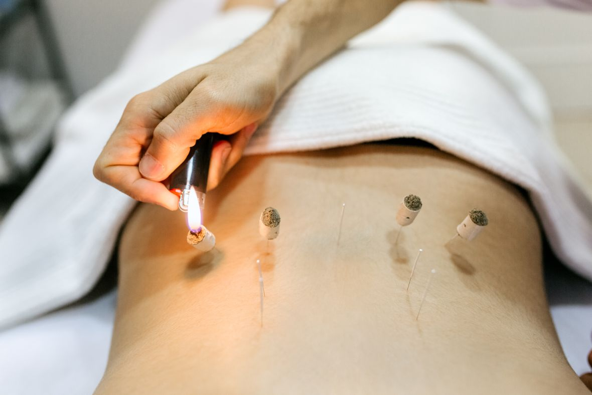 Moxibustion - UniMed TCM Plus® in Sissach